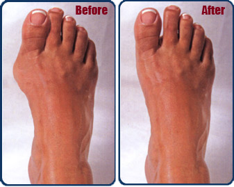 Before and after bunion treatment